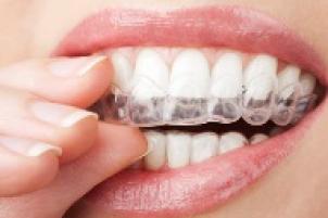 wittere tanden hebben, gele tanden behandelen