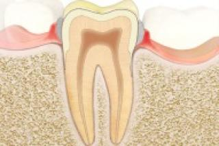 symptomen van tandvleesontsteking