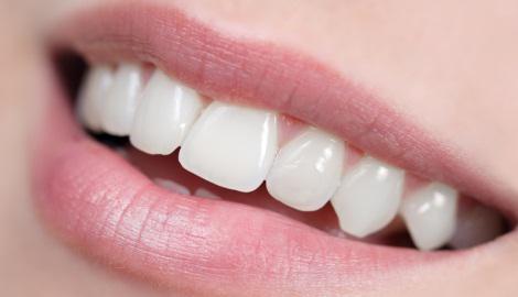 Hoe krijg je wittere tanden?